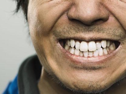 Lächeln, bis der Zahnarzt kommt